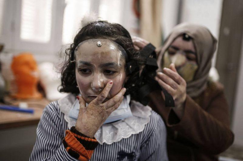 A Gaza, des masques thérapeutiques sur mesure pour les grands brûlés